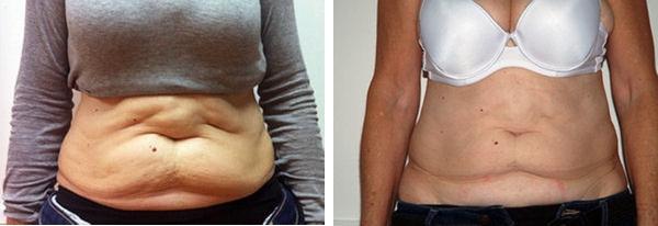 Dietas sanas para bajar de peso hombres tiempo probable que